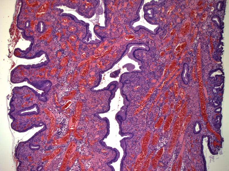 Benign Endocervical Polyp